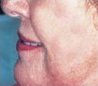 Skin Tightening after 208856
