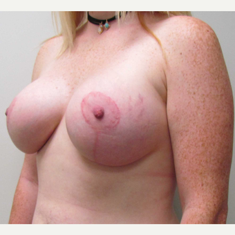 Breast Lift with Implants for This 26 Year Old Mother after 3426616