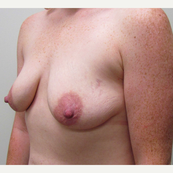 Breast Lift with Implants for This 26 Year Old Mother before 3426616