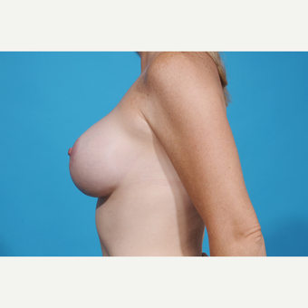35-44 year old woman treated with Breast Lift with Implants after 3777064