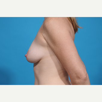 35-44 year old woman treated with Breast Lift with Implants before 3777064