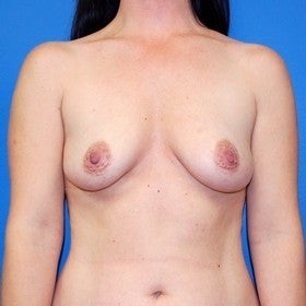 Breast Augmentation before 443367