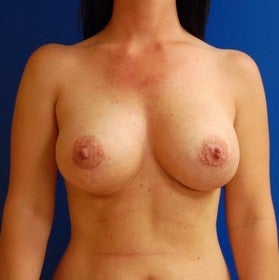 Breast Augmentation after 443367