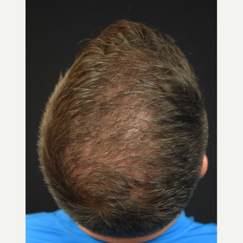 25-34 year old man treated with FUE Hair Transplant after 3685374