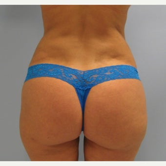 35-44 year old woman treated with Brazilian Butt Lift after 1572393