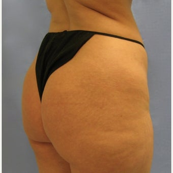 35-44 year old woman treated with Brazilian Butt Lift 1572393