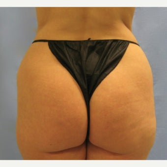 35-44 year old woman treated with Brazilian Butt Lift before 1572393
