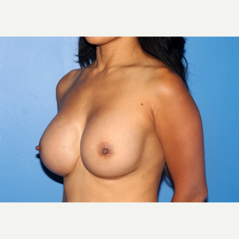 35-44 year old woman treated with Breast Implant Revision after 3246573