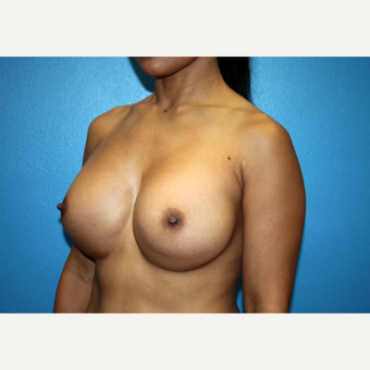 35-44 year old woman treated with Breast Implant Revision before 3246573