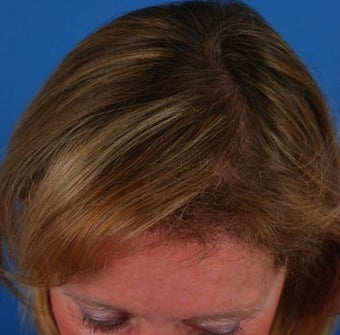 58 year old woman who sought treatment for thinning hair and high hairline