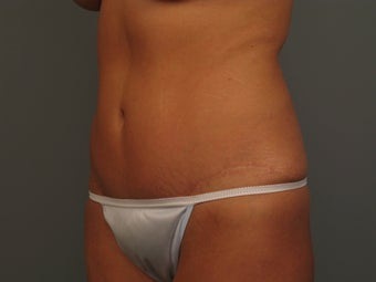 Abdominoplasty/Tummy Tuck after 1261713