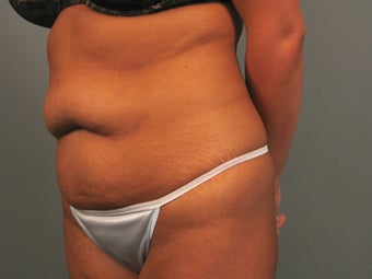 Abdominoplasty/Tummy Tuck before 1261713