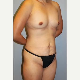 35-44 year old woman treated with Mommy Makeover before 3815667