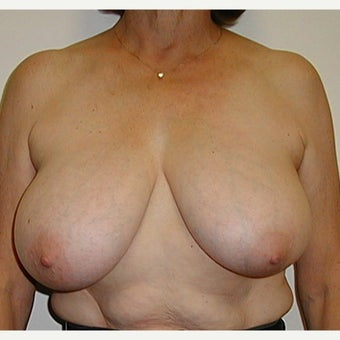 "62 year old woman treated with Breast Reduction using a ""Wise Pattern"" (""T"", anchor) technique before 2474343"