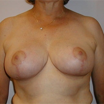 "62 year old woman treated with Breast Reduction using a ""Wise Pattern"" (""T"", anchor) technique after 2474343"