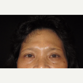 55-64 year old woman treated with Eyelid Surgery before 3320530