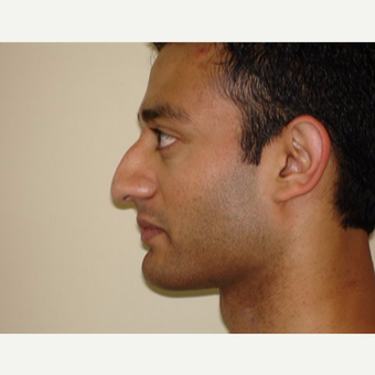 25-34 year old man treated with Rhinoplasty before 3371447