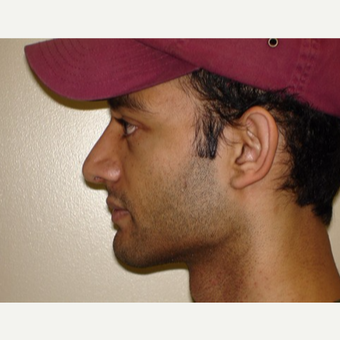 25-34 year old man treated with Rhinoplasty after 3371447