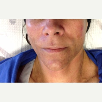 45-54 year old woman treated with Chemical Peel before 2999414