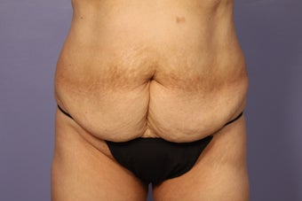 No Drain Tummy Tuck  before 1194905