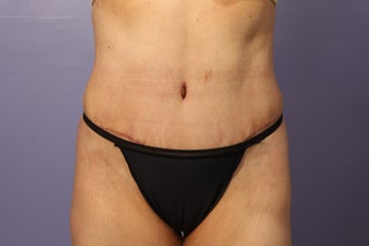 No Drain Tummy Tuck  after 1194905