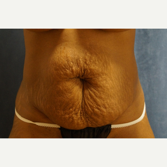 35-44 year old woman treated with Tummy Tuck before 3281773