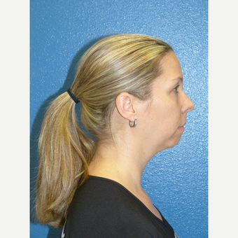 35-44 year old woman treated with Chin Implant before 2903603