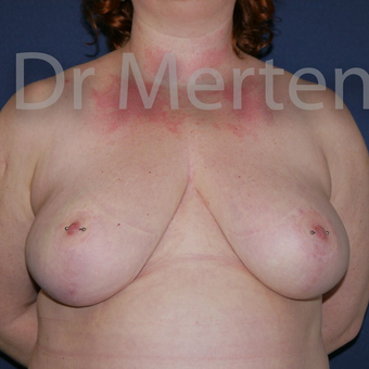 Breast Reduction after 3648545