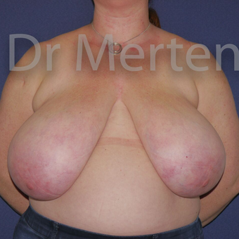Breast Reduction before 3648545