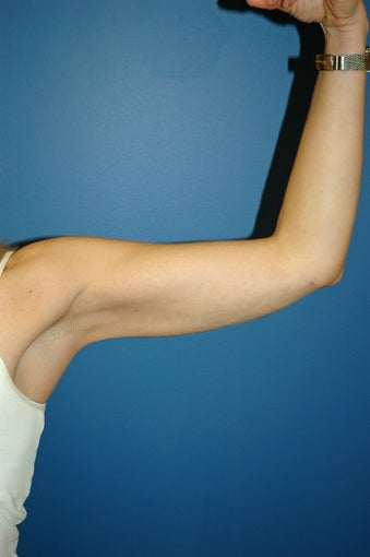 liposuction arms after 1055063