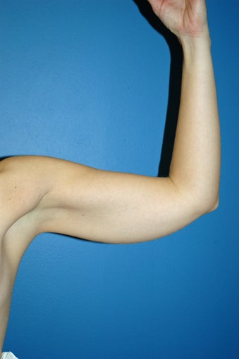 liposuction arms before 1055063