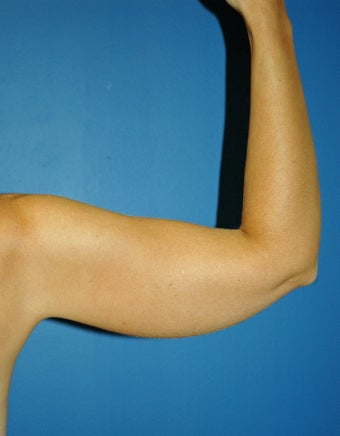 liposuction arms 1055063