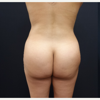 25-34 year old woman treated with Brazilian Butt Lift Revision before 3286168