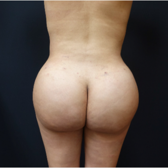 25-34 year old woman treated with Brazilian Butt Lift Revision after 3286168