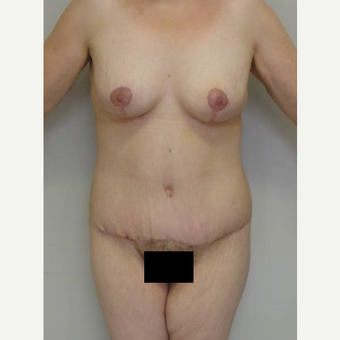 35-44 year old woman treated with Body Lift after 3402336