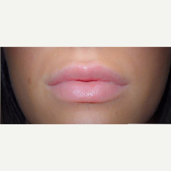 25-34 year old woman treated with Juvederm after 3522470