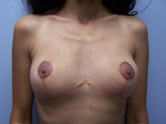 Breast Implant Removal with breast lift after 1232545