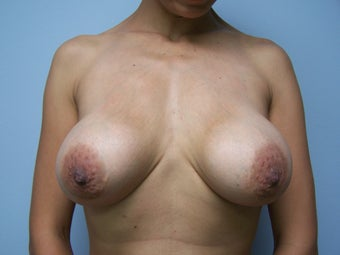 Breast Implant Removal with breast lift before 1232545