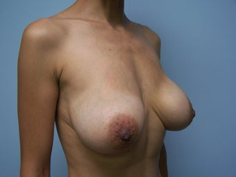 Breast Implant Removal with breast lift 1232545