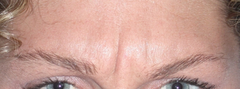 "Botox for Glabella ""11's"" before 1376631"