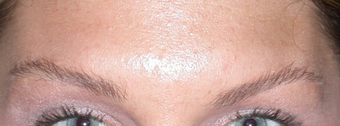 "Botox for Glabella ""11's"" after 1376631"