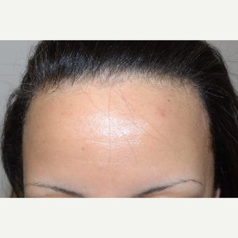 25-34 year old woman treated with Hair Transplant