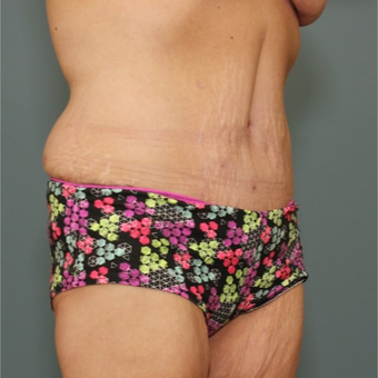 45-54 year old woman requesting a Tummy Tuck after 3346528