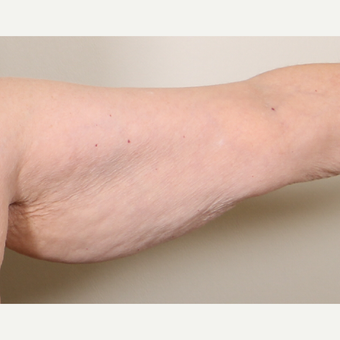 55-64 year old woman treated with Arm Lift before 3603038