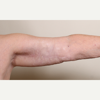 55-64 year old woman treated with Arm Lift after 3603038