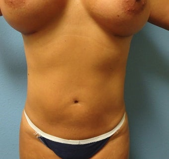 35-44 year old woman treated with Liposuction after 1806860