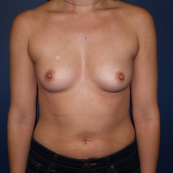25-34 year old woman treated with Breast Augmentation before 3398672