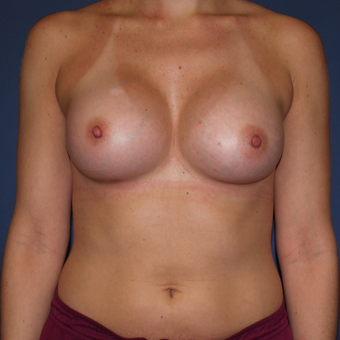 25-34 year old woman treated with Breast Augmentation after 3398672