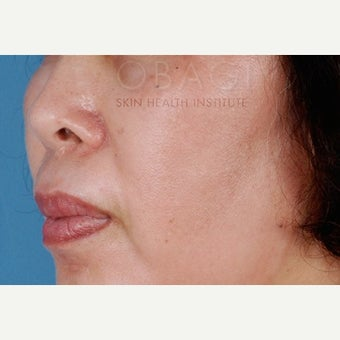 55-64 year old woman treated with Melasma Treatment after 2383425