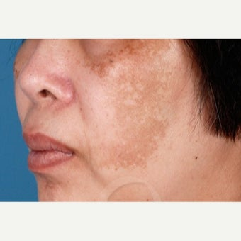 55-64 year old woman treated with Melasma Treatment before 2383425
